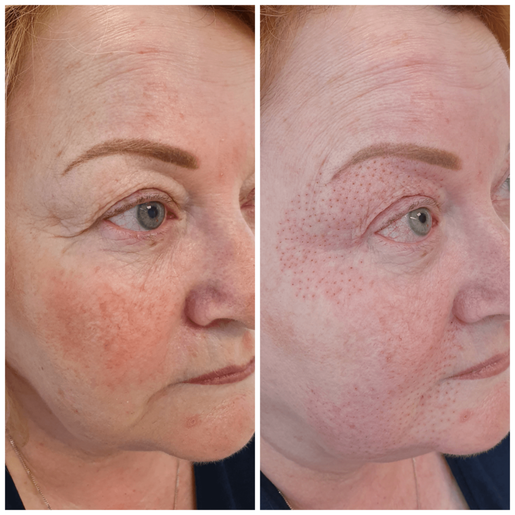 plasma skin tightening treatment