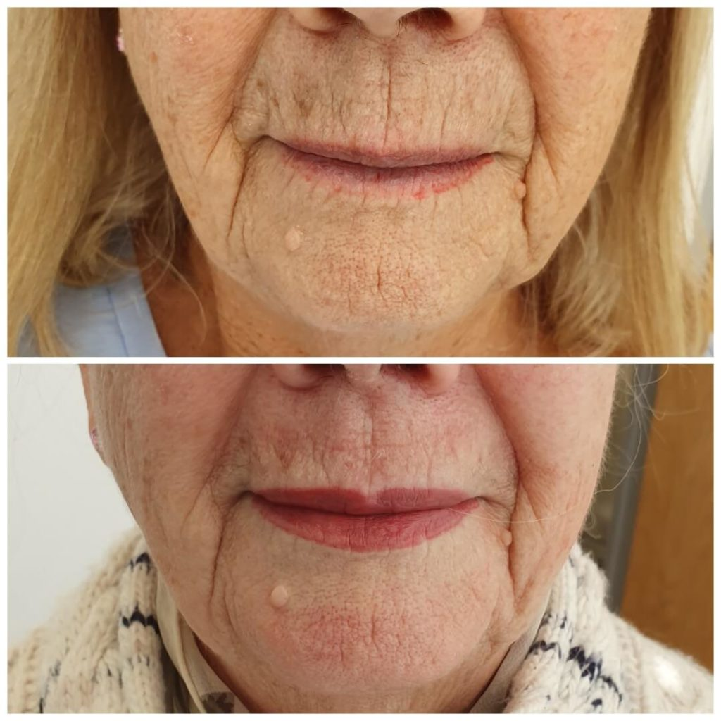 Plasma Skin Tightening Before and After Treatment
